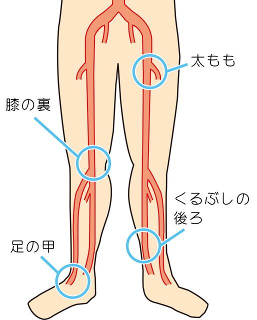 閉塞性動脈硬化症 | 川崎大師いしまる内科クリニック